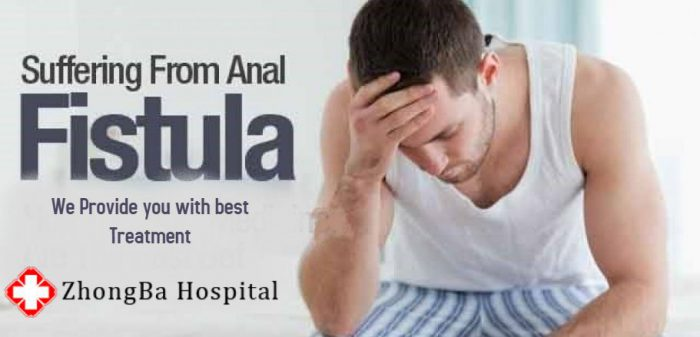 anal fistula gastroenterologist in lahore bawaseer ka ilaj piles treatment chinese specialist in lahore gastrointestinal specialist