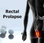 rectal prolapse gastroenterologist in lahore bawaseer ka ilaj piles treatment chinese specialist in lahore gastrointestinal specialist