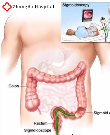 Fecal impaction gastroenterologist in lahore bawaseer ka ilaj piles treatment chinese specialist in lahore gastrointestinal specialist