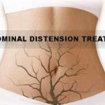 abdominal distension treatment, abdominal distension treatment in Lahore, best stomach doctor in lahore, best piles doctor in johar town, bawaseer ka ilaj, bawaseer ka ilaj in lahore, best gastroenterologist in lahore, best gastrointestinal doctor in lahore, piles doctor near me, best piles doctor in johar town, best bawaseer doctor in lahore, best doctor in johar town, stomach specialist in johar town