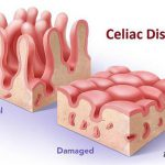 celiac treatment lahore gastroenterologist in lahore bawaseer ka ilaj piles treatment chinese specialist in lahore gastrointestinal specialist