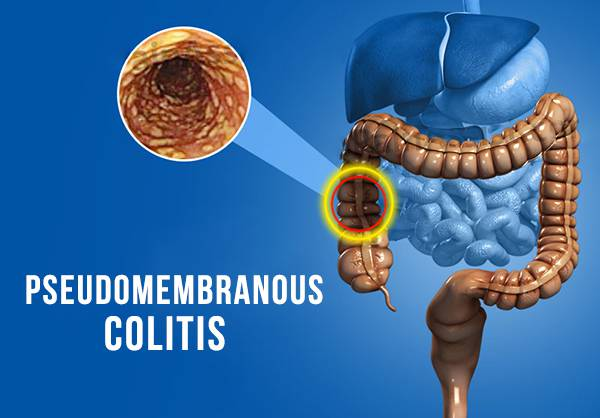 pseudomembranous colitis gastroenterologist in lahore bawaseer ka ilaj piles treatment chinese specialist in lahore gastrointestinal specialist, best hospital in lahore