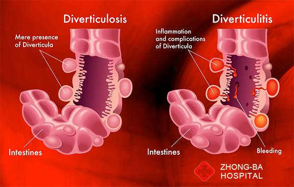 diverticulitis gastroenterologist in lahore bawaseer ka ilaj piles treatment chinese specialist in lahore gastrointestinal specialist