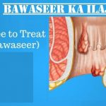 bawaseer ka ilaj, bawaseer ka ilaj in lahore, best gastroenterologist in lahore, piles treatment in lahore, hemorrhoids treatment in lahore, stomach doctor in lahore