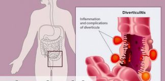 diverticulitis treatment gastroenterologist in lahore bawaseer ka ilaj piles treatment chinese specialist in lahore gastrointestinal specialist