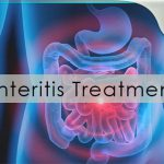 enteritis treatment gastroenterologist in lahore bawaseer ka ilaj piles treatment chinese specialist in lahore gastrointestinal specialist